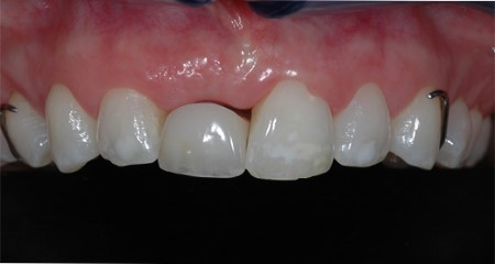 Transitional restorations at implant sites